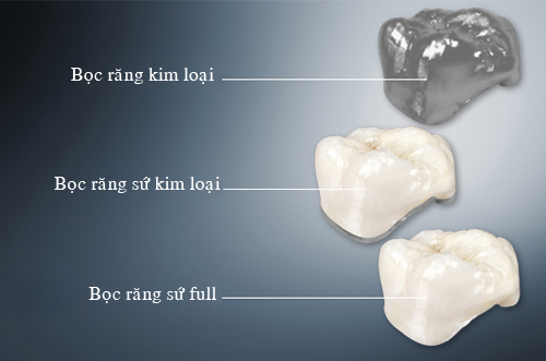 Do ben cua rang su Zirconia 04