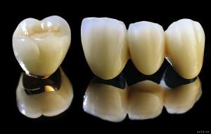 răng sứ thẩm mỹ titan