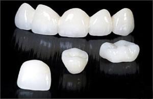 Giá các loại răng sứ hiện nay