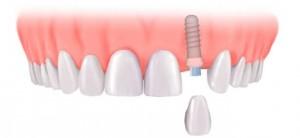 Cấy ghép implant cho một răng