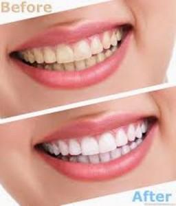 Dịch vụ tẩy trắng răng tốt nhất ở đâu