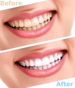 Tẩy trắng răng công nghệ mới