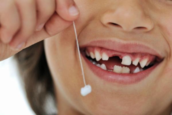 Cấy ghép implant khi mất một răng cửa