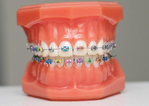 Niềng răng hô hàm dưới có đau không