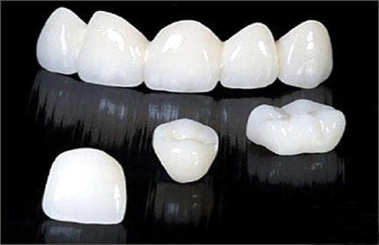 Bọc răng sứ thẩm mỹ hết bao nhiêu tiền ?