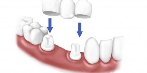 Chụp răng sứ bằng Công nghệ CT 5 chiều