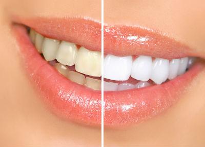 Công nghệ tẩy trắng răng
