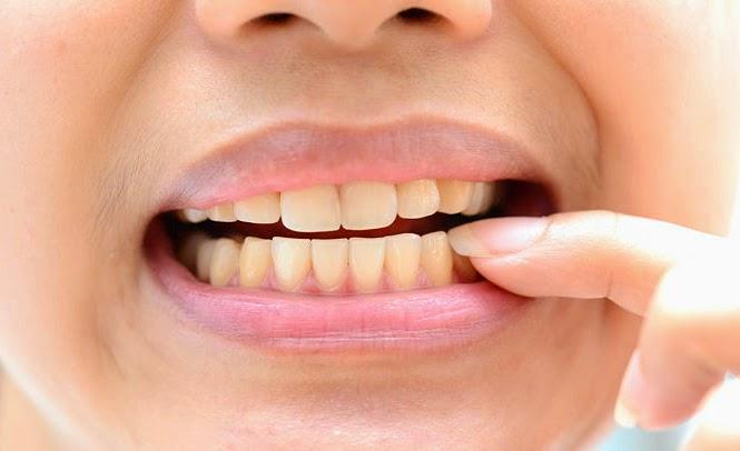 Hiện tượng ê buốt khi tẩy trắng răng