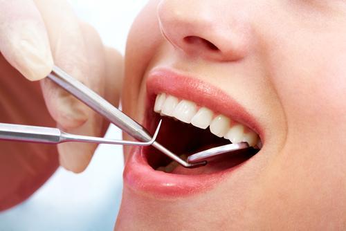 Niềng răng mặt trong có giá bao nhiêu ?