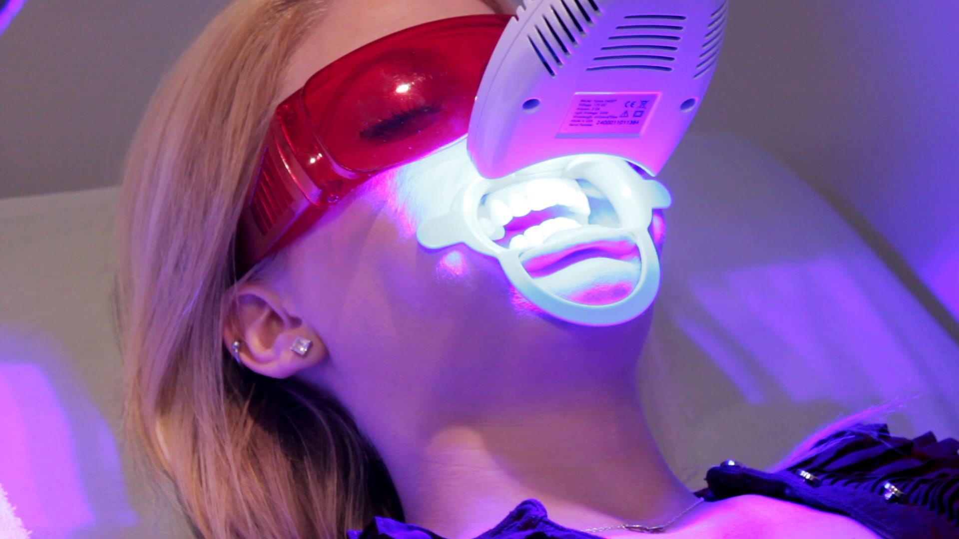 Tẩy trắng răng có đắt không