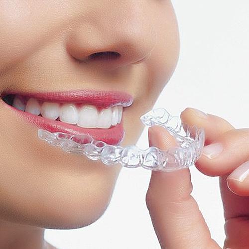 Niềng răng hô giá bao nhiêu?