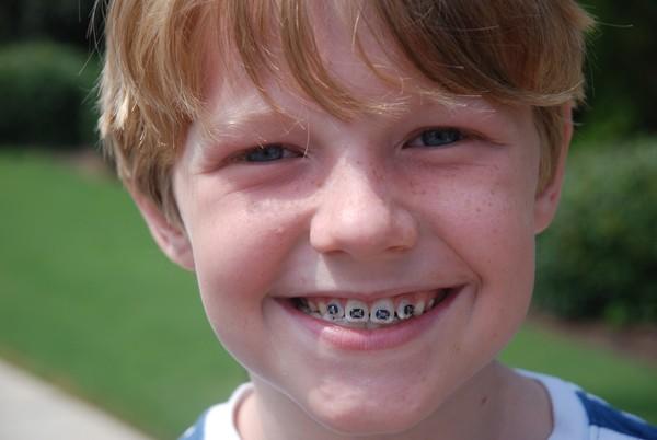 Niềng răng thẩm mỹ cho trẻ em