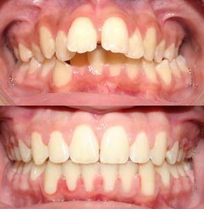 chi phí niềng răng hô hàm trên