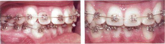 Ưu điểm của giải pháp niềng răng khểnh 2