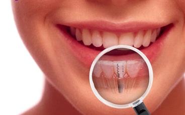 Quy trình cấy ghép Implant khi phục hình răng 5