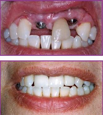Quy trình cấy ghép Implant khi phục hình răng 1