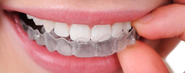 Niềng răng không mắc cài invisalign giá bao nhiêu ?