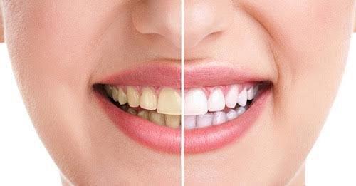 Các trường hợp nên bọc răng sứ 1