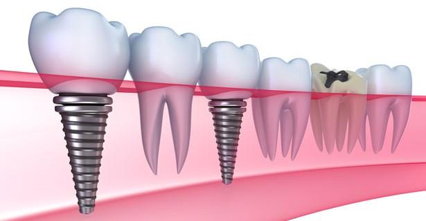 Qúa trình phục hồi sau khi cấy ghép implant