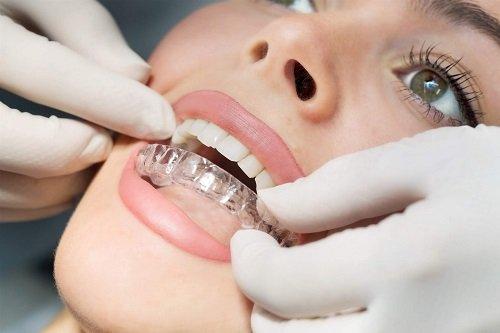 Niềng răng cho người trưởng thành 1