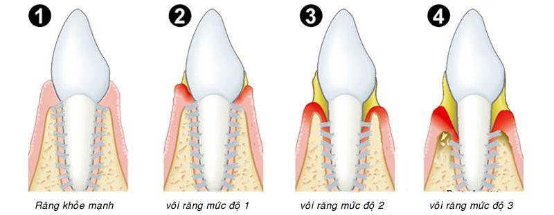 Cạo vôi và đánh bóng răng liệu pháp an toàn và thẩm mỹ