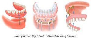 Implant tháo lắp cho người mất toàn hàm
