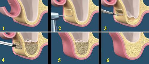 Nâng xoang hàm quy trình quan trọng khi phục hình răng