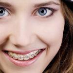 Niềng răng mắc cài kim loại phương pháp chỉnh nha hiệu quả