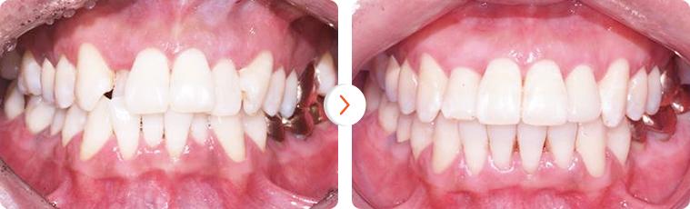 Niềng răng mắc cài sứ phương pháp chỉnh nha hiệu quả