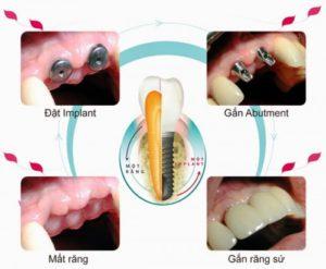 quá trình trồng răng Implant