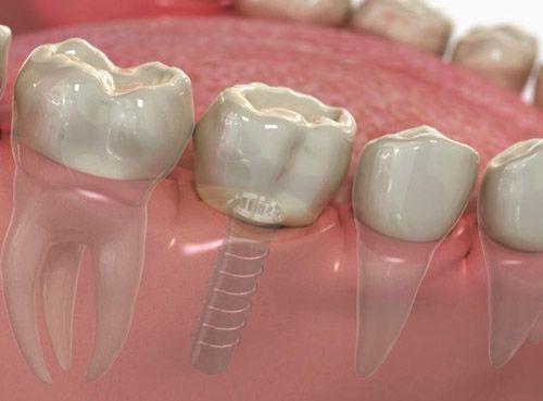 Bảng giá trồng răng Implant 1