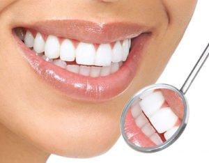 thời gian bọc răng sứ có lâu không