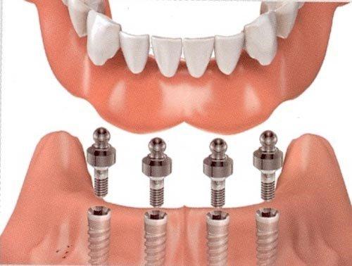 Dịch vụ cấy ghép implant tại trung tâm nha khoa 3