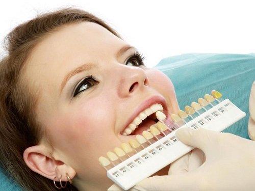 Bọc răng sứ kim loại nên hay không nên? 3