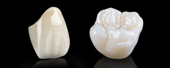 bọc răng toàn sứ