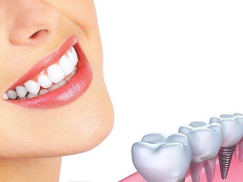Những trường hợp cần Implant răng 1