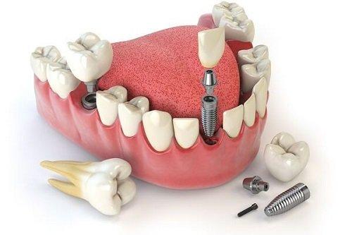 Những trường hợp cần Implant răng 2