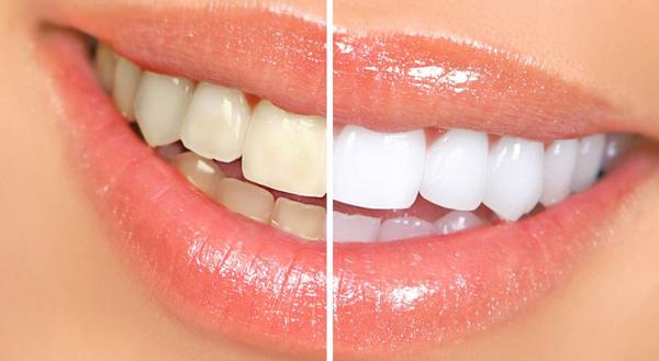 Tẩy trắng răng tại nhà bao nhiêu tiền?