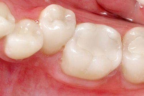 Trám răng không nên ăn gì?