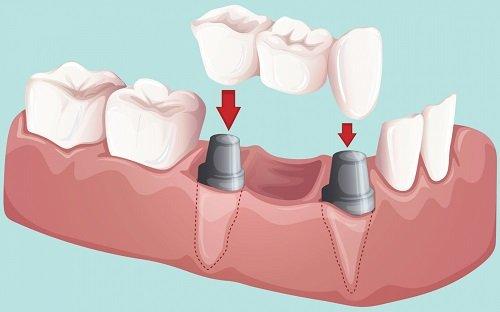 Trồng răng có đau không? 1