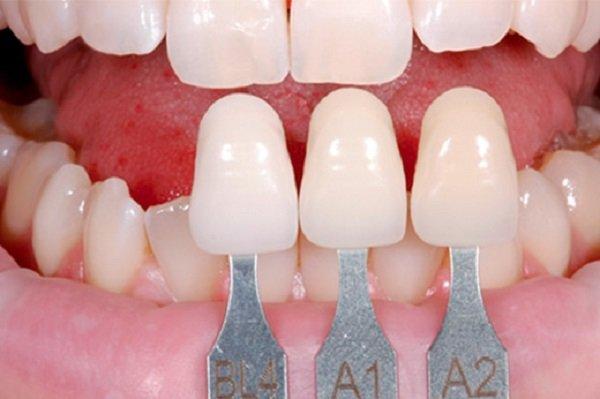 Trồng răng sứ cố định khoẻ đẹp dài lâu