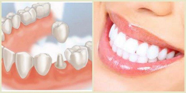 Trồng răng thẩm mỹ an toàn hiệu quả