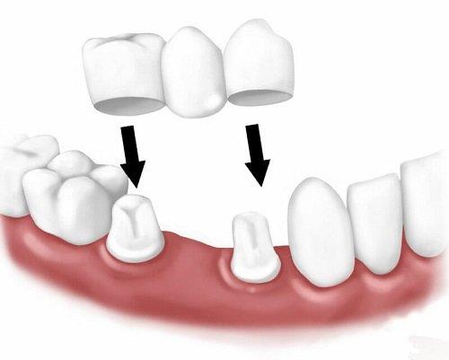 Làm cầu răng sứ - Nên hay không nên? 1