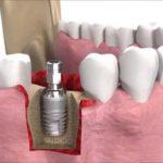 lam-rang-implant-het-bao-nhieu-tien-1
