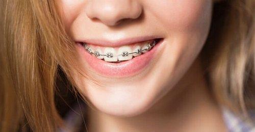 Niềng răng giá rẻ ở Hà Nội? 1