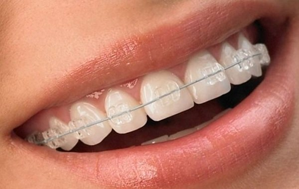 Niềng răng pha lê giá bao nhiêu tiền?