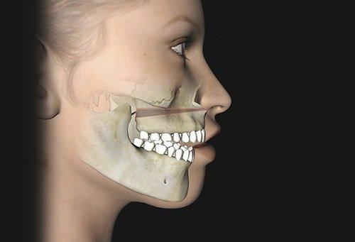 Phẫu thuật vẩu hàm trên? 1