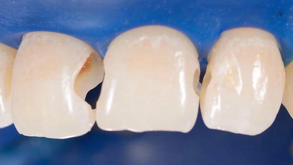 Răng bị bể có trám được không?