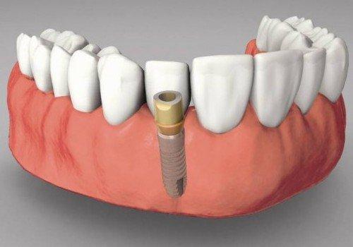 trong-rang-implant-gia-re-2