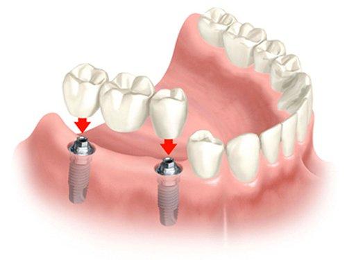 trong-rang-implant-gia-re-3